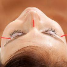 Cosmetic Acupuncture Oakville, Missisauga